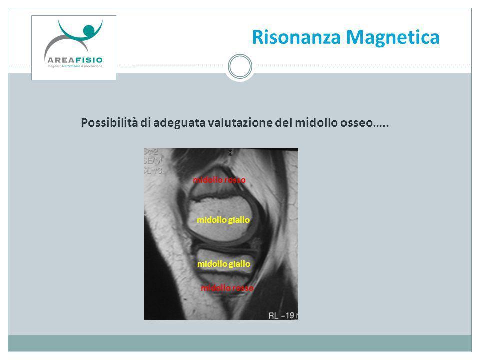 Risonanza Magnetica Possibilità di adeguata valutazione del midollo osseo….. midollo rosso. midollo giallo.
