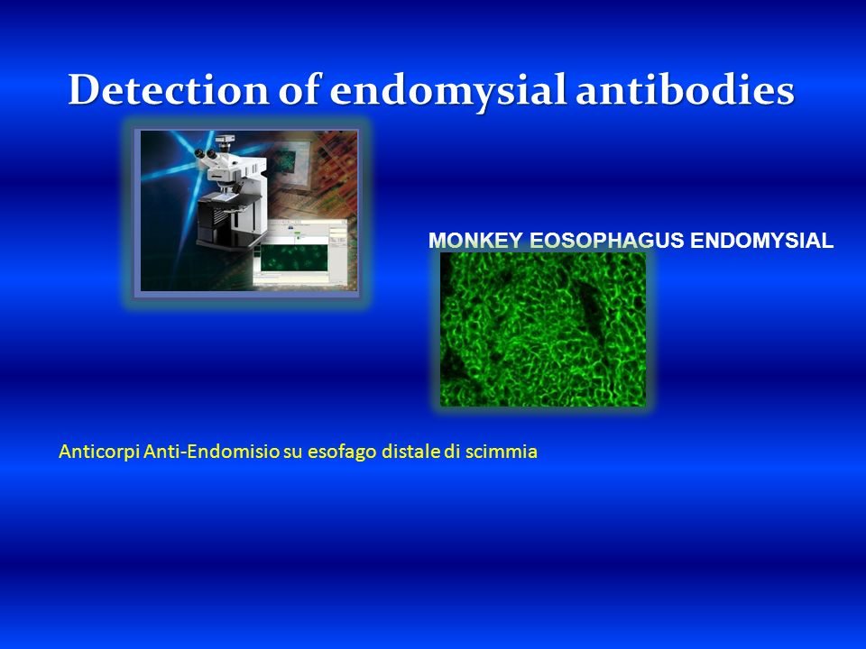 Detection of endomysial antibodies