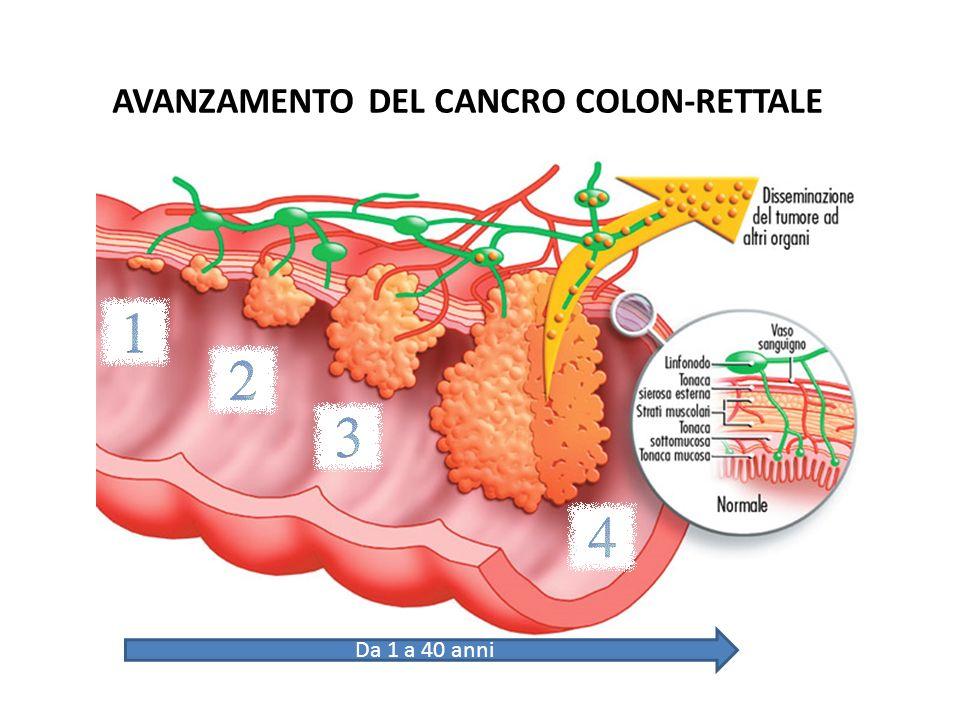 AVANZAMENTO DEL CANCRO COLON-RETTALE