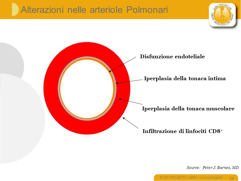 Alterazioni nelle arteriole Polmonari