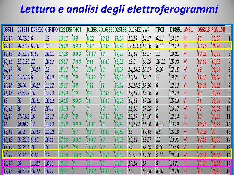 Lettura e analisi degli elettroferogrammi