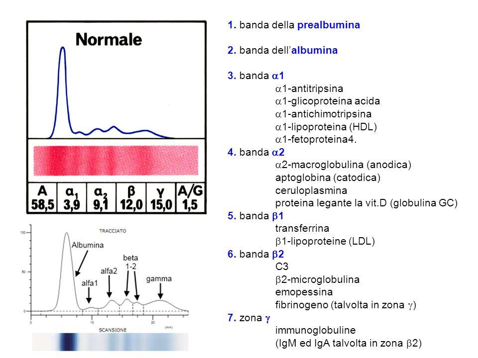 1. banda della prealbumina