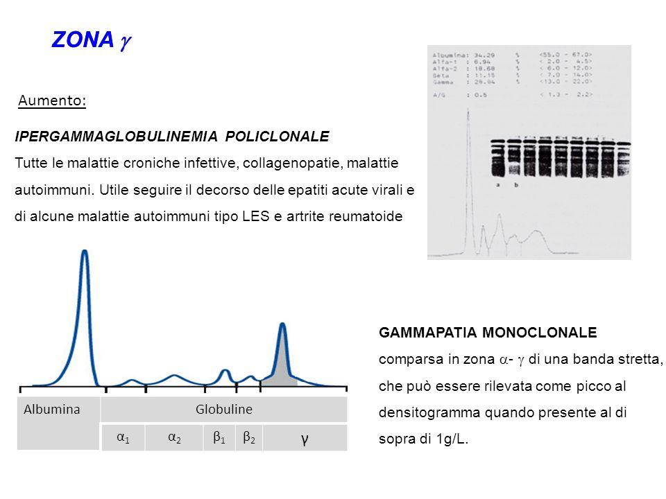 ZONA  ZONA  γ Aumento: IPERGAMMAGLOBULINEMIA POLICLONALE