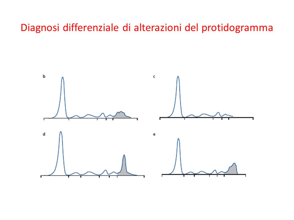Diagnosi differenziale di alterazioni del protidogramma