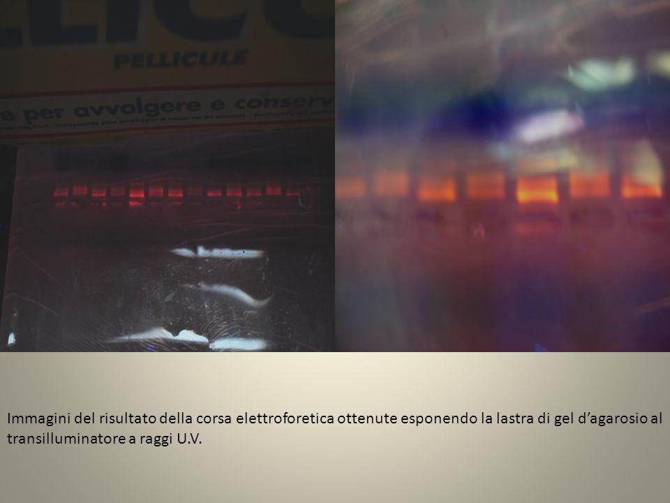Immagini del risultato della corsa elettroforetica ottenute esponendo la lastra di gel d'agarosio al transilluminatore a raggi U.V.