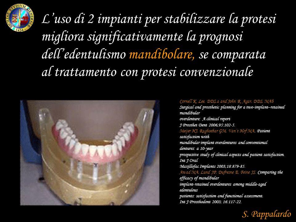 L'uso di 2 impianti per stabilizzare la protesi