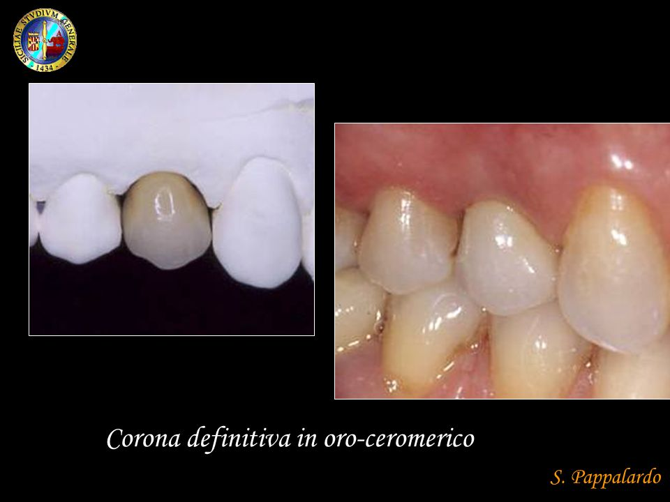 Corona definitiva in oro-ceromerico