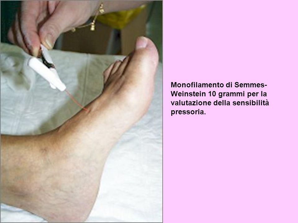 Monofilamento di Semmes-Weinstein 10 grammi per la valutazione della sensibilità pressoria.