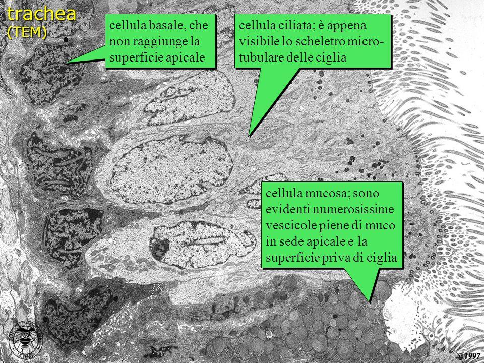 trachea (TEM) cellula basale, che non raggiunge la superficie apicale