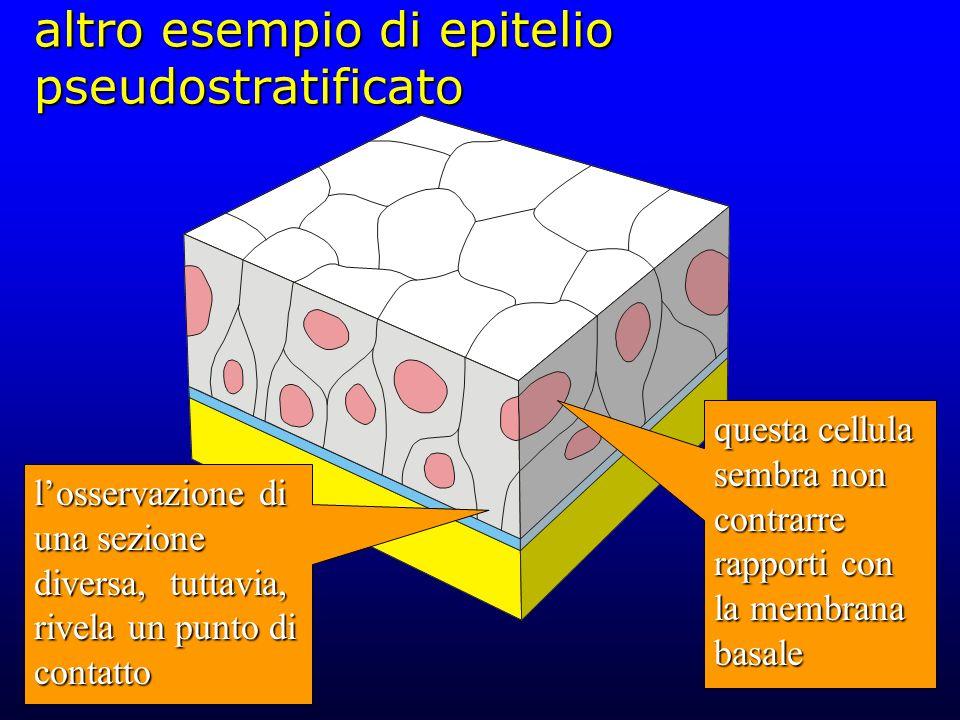 altro esempio di epitelio pseudostratificato