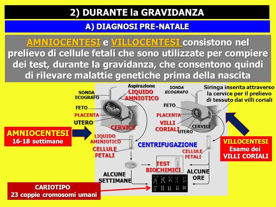2) DURANTE la GRAVIDANZA A) DIAGNOSI PRE-NATALE