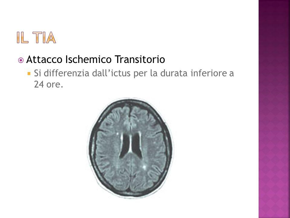 Il tia Attacco Ischemico Transitorio
