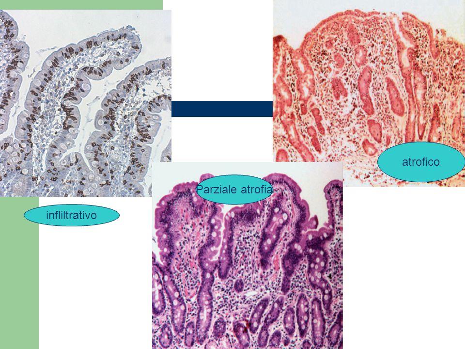 atrofico Parziale atrofia infliltrativo