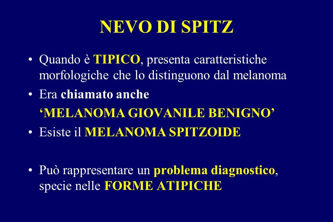 NEVO DI SPITZ Quando è TIPICO, presenta caratteristiche morfologiche che lo distinguono dal melanoma.