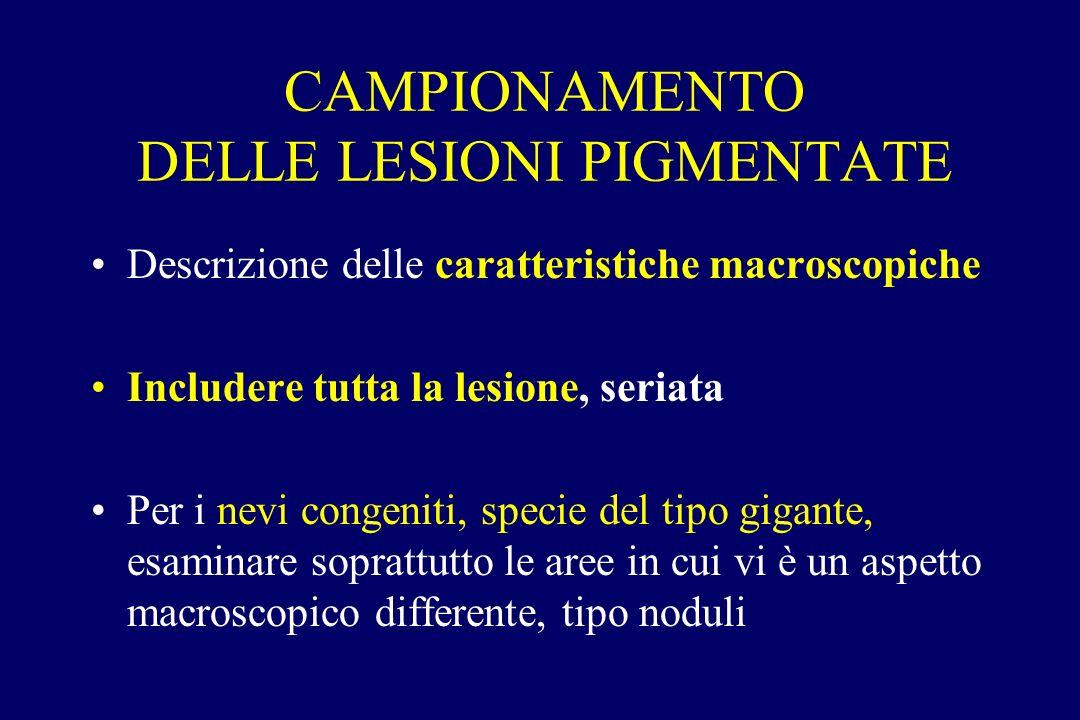 CAMPIONAMENTO DELLE LESIONI PIGMENTATE