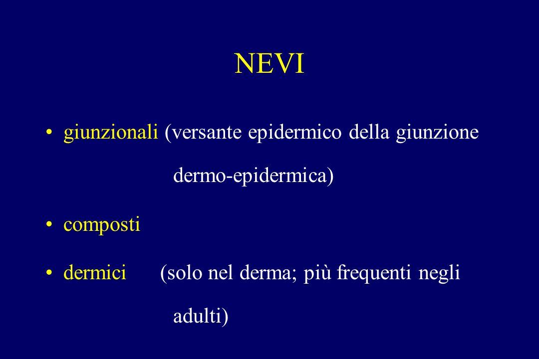 NEVI giunzionali (versante epidermico della giunzione dermo-epidermica) composti.