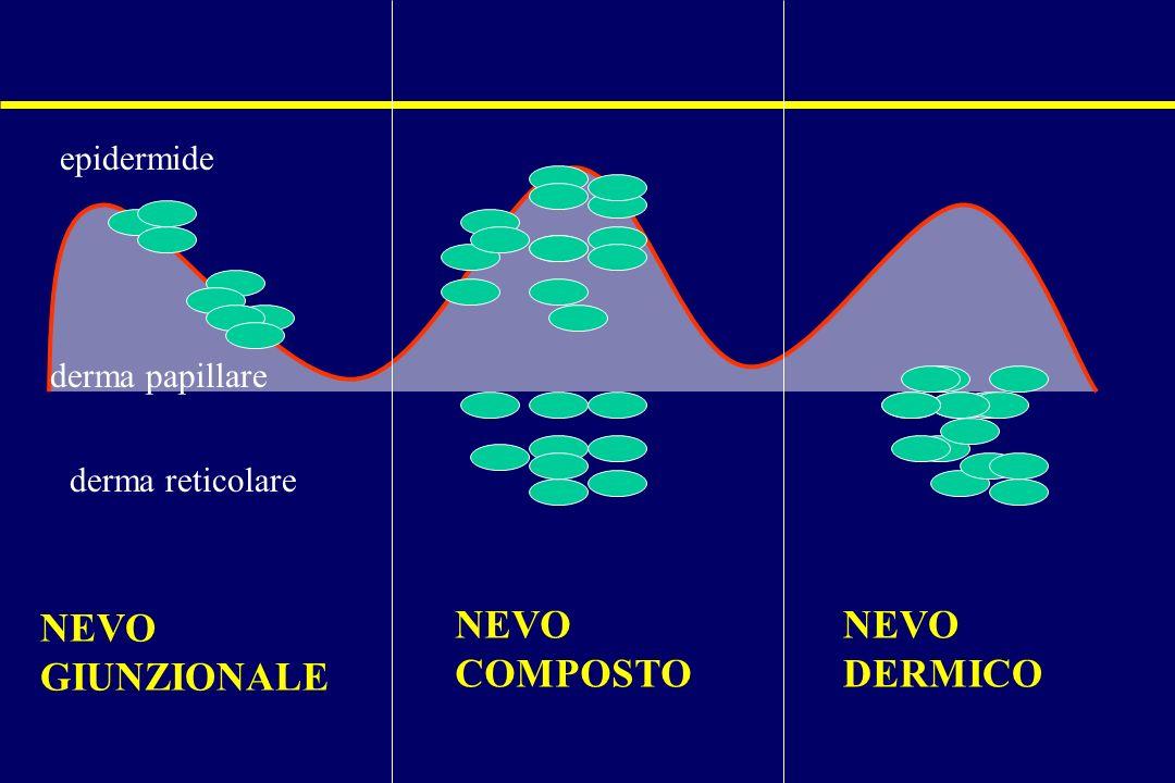 NEVO GIUNZIONALE NEVO COMPOSTO NEVO DERMICO epidermide derma papillare