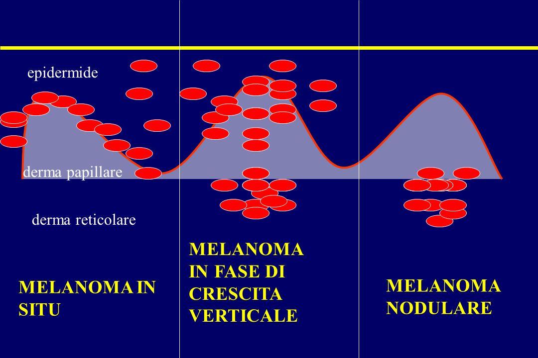 MELANOMA IN FASE DI CRESCITA VERTICALE MELANOMA MELANOMA IN SITU