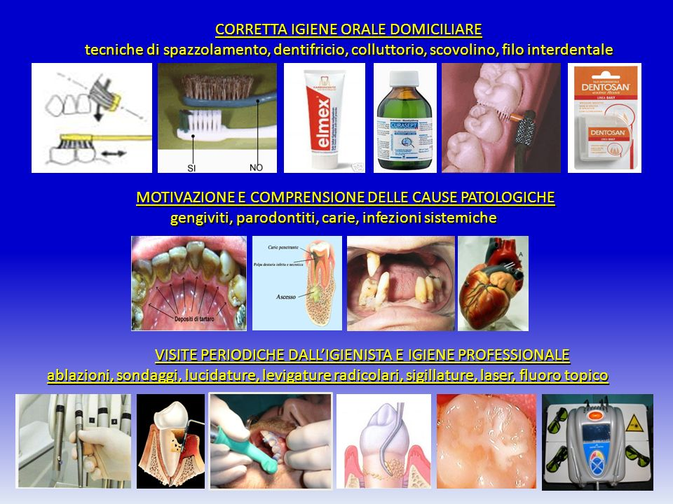 gengiviti, parodontiti, carie, infezioni sistemiche