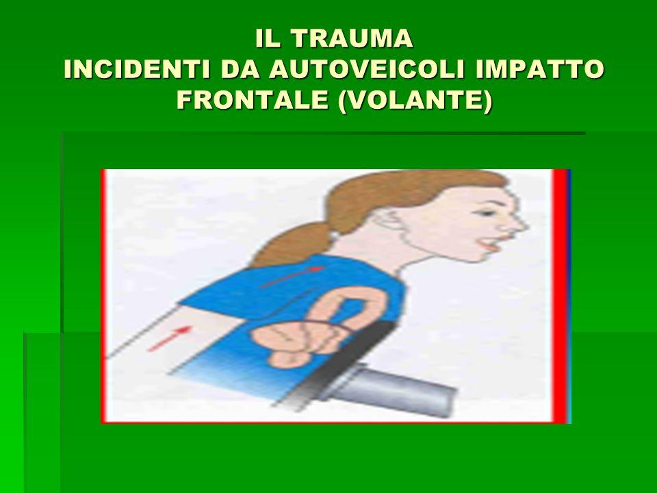 IL TRAUMA INCIDENTI DA AUTOVEICOLI IMPATTO FRONTALE (VOLANTE)