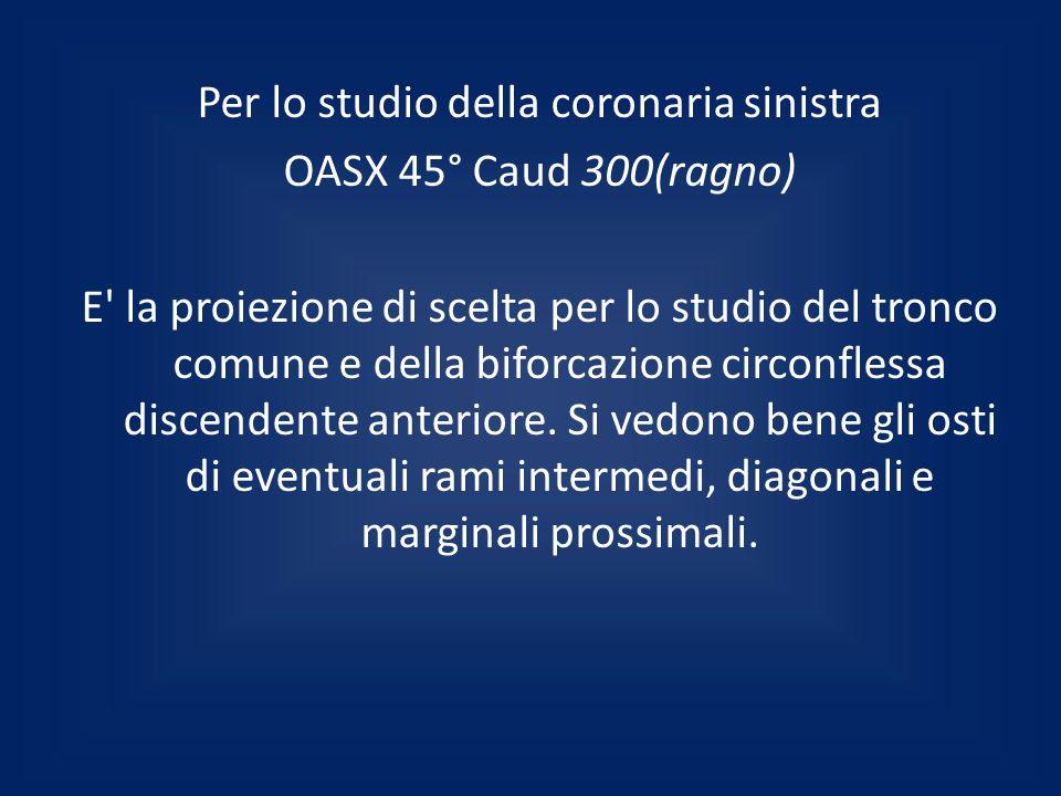 Per lo studio della coronaria sinistra OASX 45° Caud 300(ragno) E la proiezione di scelta per lo studio del tronco comune e della biforcazione circonflessa discendente anteriore.