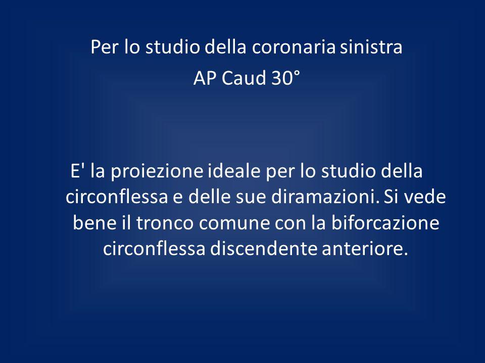 Per lo studio della coronaria sinistra AP Caud 30° E la proiezione ideale per lo studio della circonflessa e delle sue diramazioni.