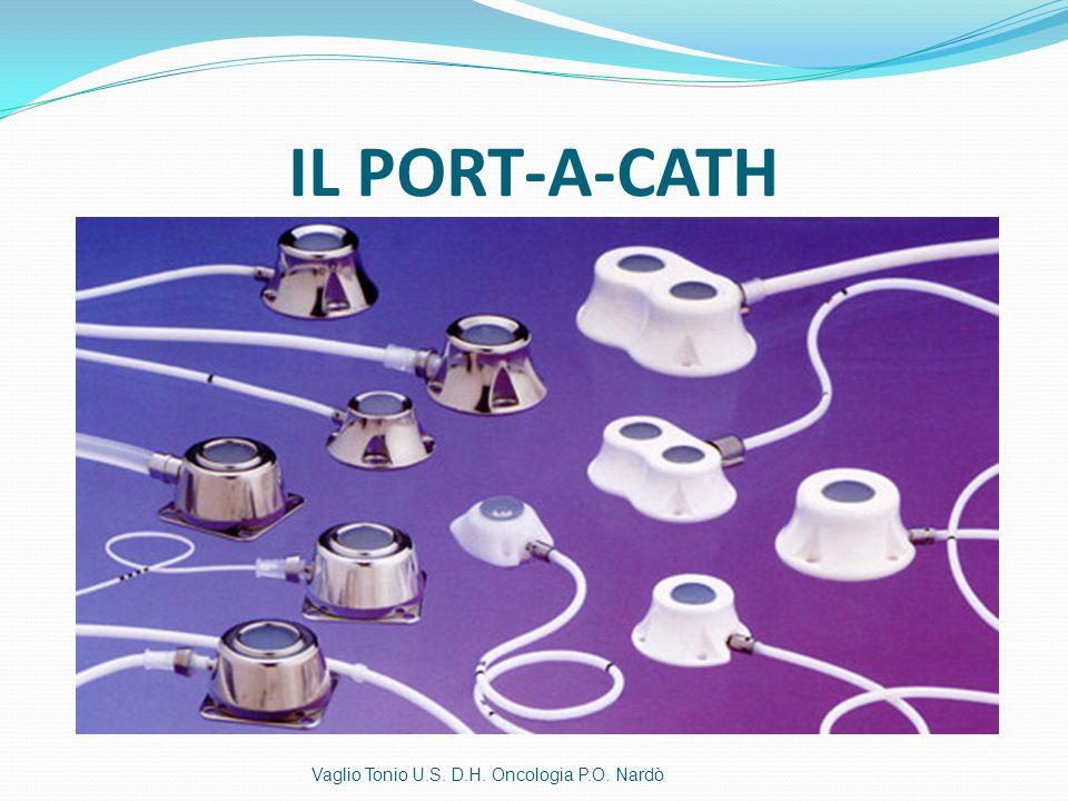 IL PORT-A-CATH Vaglio Tonio U.S. D.H. Oncologia P.O. Nardò