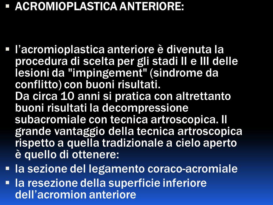 ACROMIOPLASTICA ANTERIORE: