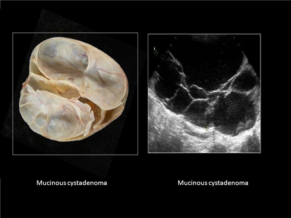Mucinous cystadenoma Mucinous cystadenoma