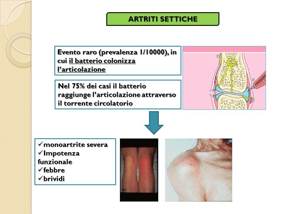 ARTRITI SETTICHE Evento raro (prevalenza 1/10000), in cui il batterio colonizza l'articolazione.