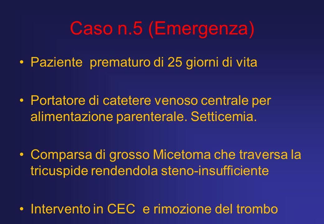 Caso n.5 (Emergenza) Paziente prematuro di 25 giorni di vita