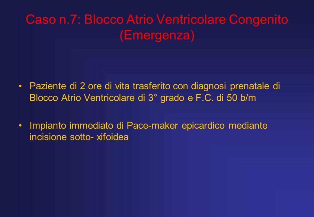 Caso n.7: Blocco Atrio Ventricolare Congenito (Emergenza)