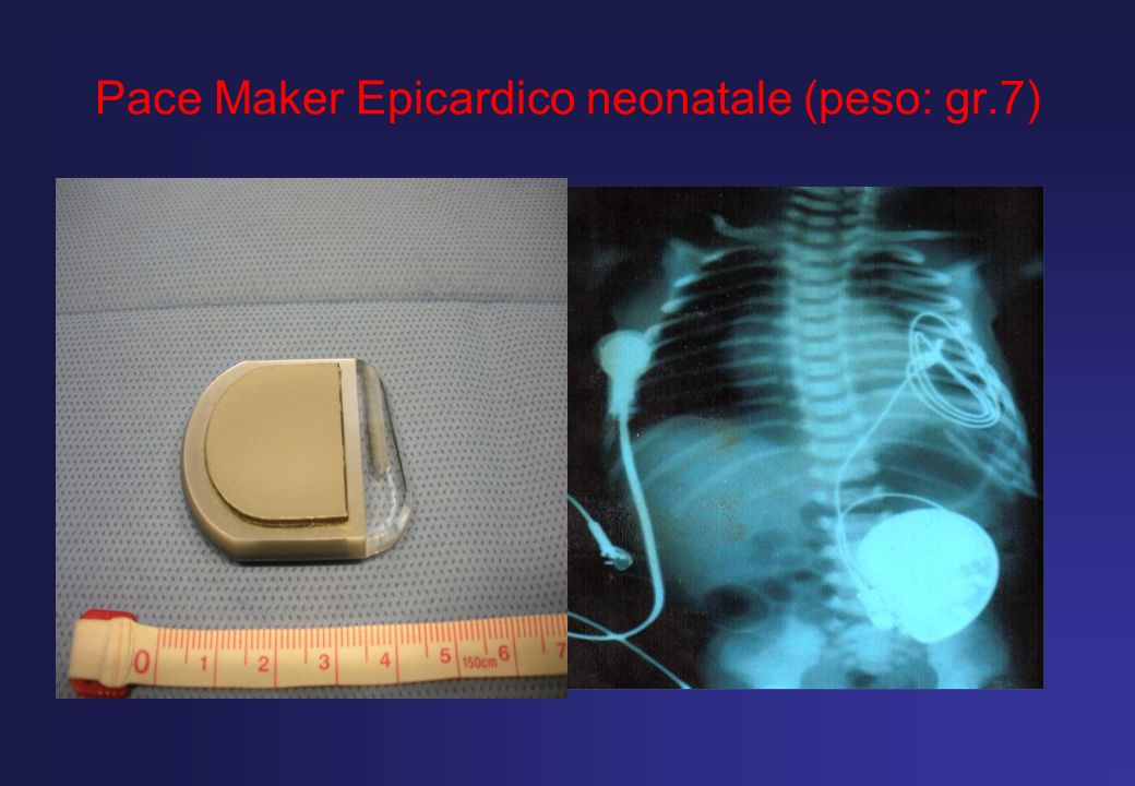 Pace Maker Epicardico neonatale (peso: gr.7)