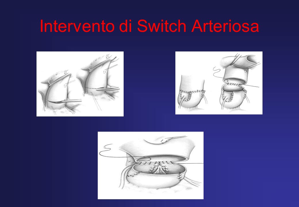 Intervento di Switch Arteriosa