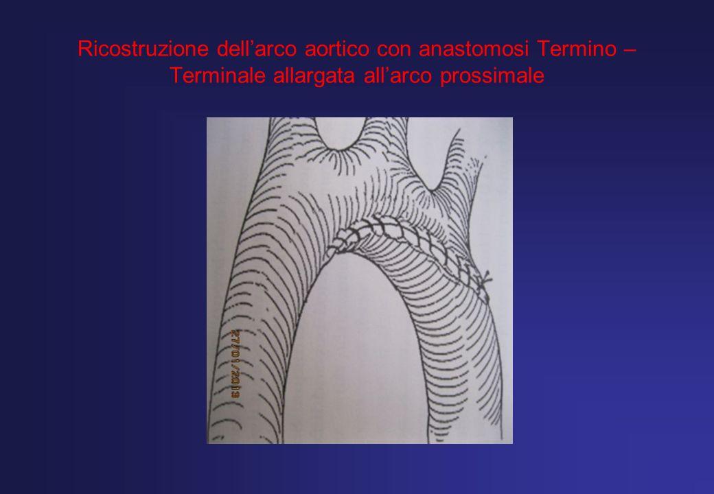 Ricostruzione dell'arco aortico con anastomosi Termino –Terminale allargata all'arco prossimale
