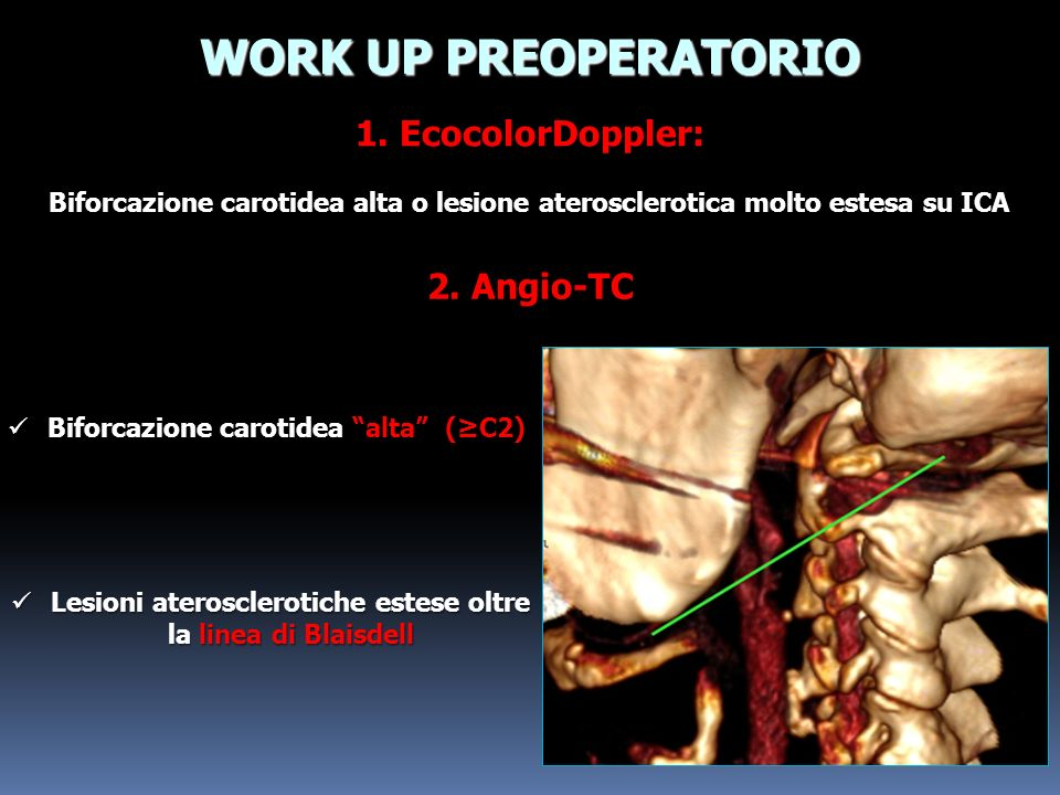 WORK UP PREOPERATORIO 1. EcocolorDoppler: 2. Angio-TC