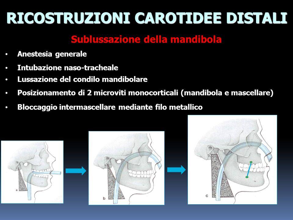 RICOSTRUZIONI CAROTIDEE DISTALI Sublussazione della mandibola