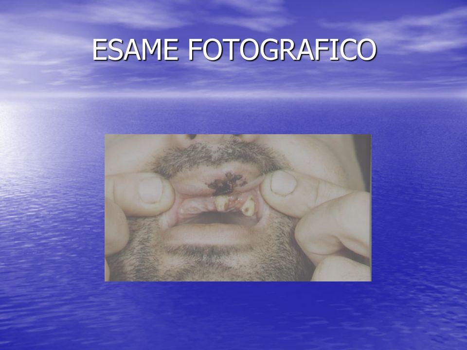 ESAME FOTOGRAFICO Trauma facciale con dislocazione di protesi ibrida: gli elementi del ponte sostenevano lo scheletrato rimovibile.