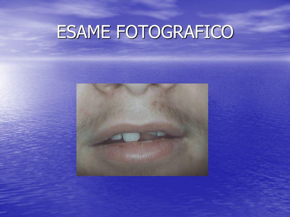 ESAME FOTOGRAFICO DISLALIA IN PAZIENTE CON TRAUMA ODONTOGENO PREGRESSO