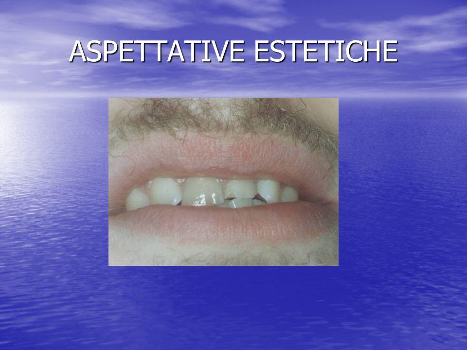 ASPETTATIVE ESTETICHE