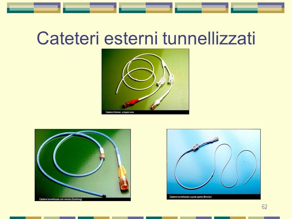 Cateteri esterni tunnellizzati