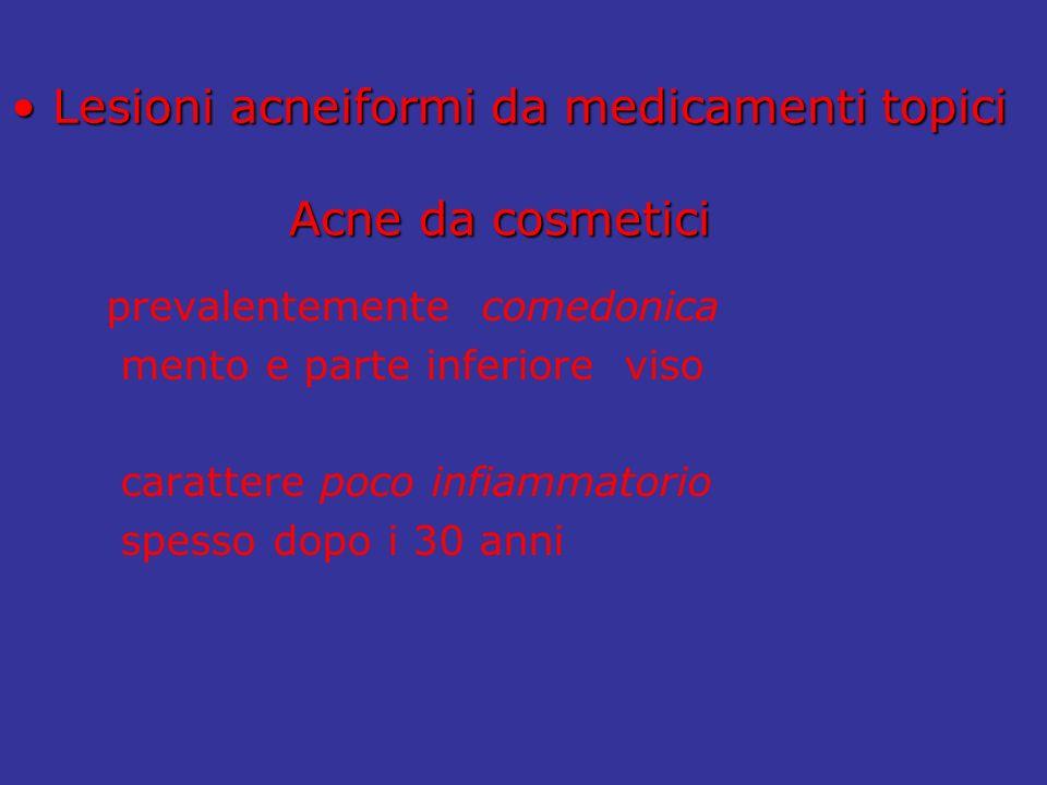 Lesioni acneiformi da medicamenti topici Acne da cosmetici