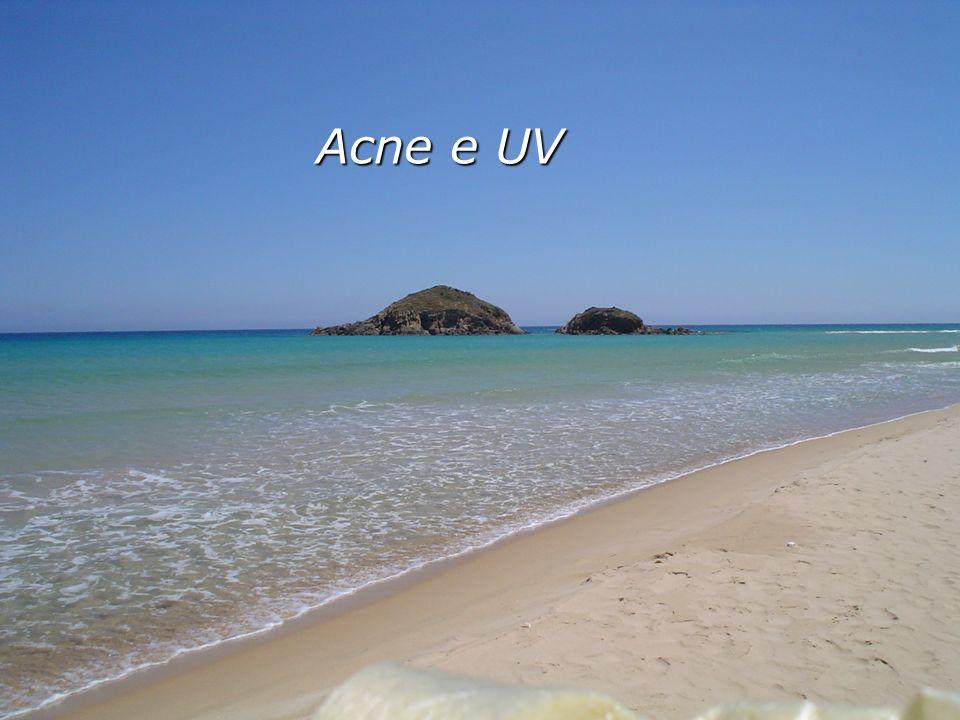 Acne e UV