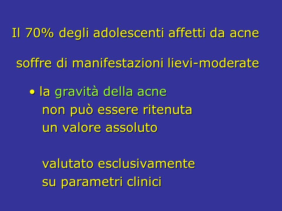 Il 70% degli adolescenti affetti da acne