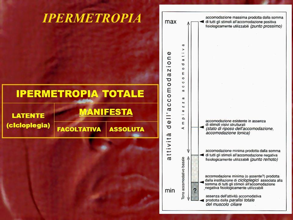 IPERMETROPIA IPERMETROPIA TOTALE MANIFESTA LATENTE (cIcloplegia)
