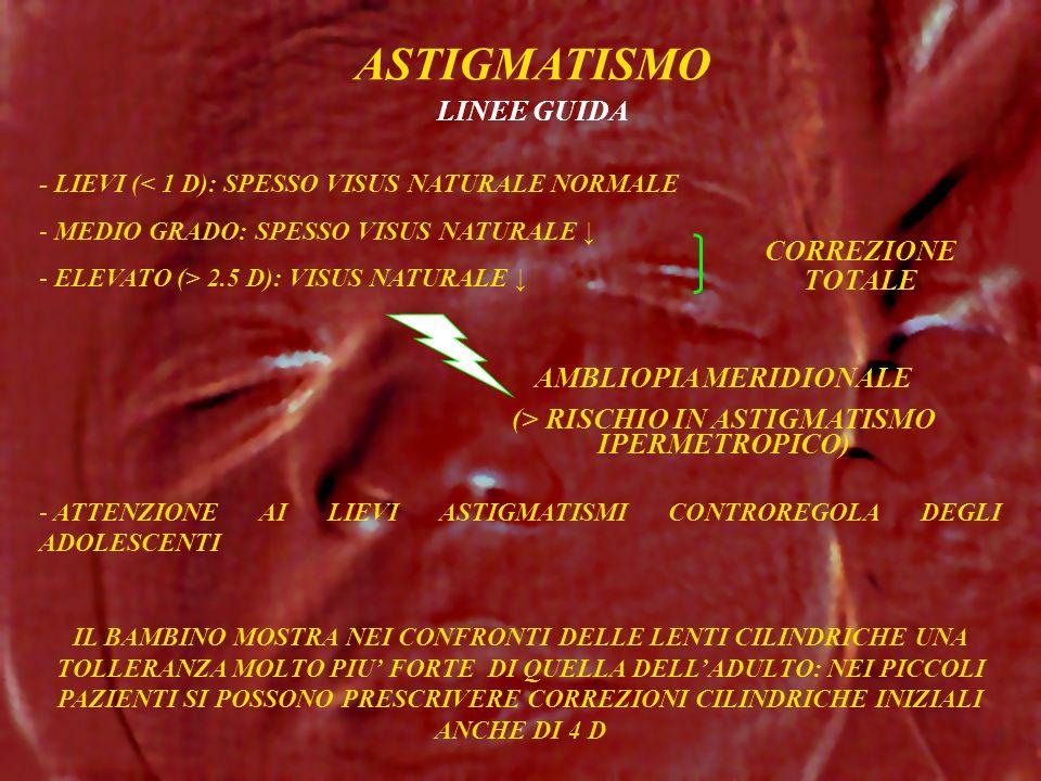 AMBLIOPIA MERIDIONALE (> RISCHIO IN ASTIGMATISMO IPERMETROPICO)
