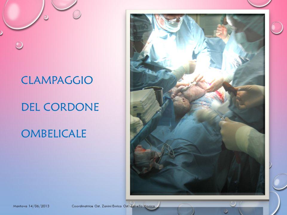 CLAMPAGGIO DEL CORDONE OMBELICALE