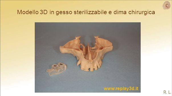 Modello 3D in gesso sterilizzabile e dima chirurgica