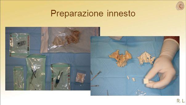 Preparazione innesto