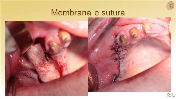 Membrana e sutura